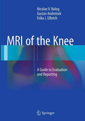 Bolog, Nicolae V., Andreisek, Gustav, Ulbrich, Erika J. - MRI of the Knee: A Guide to Evaluation and Reporting - 9783319352534 - V9783319352534