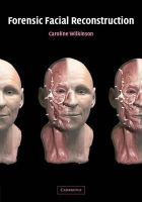 Wilkinson, Professor Caroline - Forensic Facial Reconstruction - 9780521090124 - V9780521090124