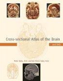 Ratiu, Peter, M.D.; Talos, Ion-Florin, M.D. - Cross-Sectional Atlas of the Human Brain - 9780674019232 - V9780674019232