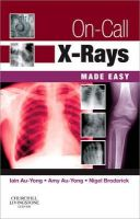 Au-Yong, Iain; Au-Yong, Amy; Broderick, Nigel - On-call X-rays Made Easy - 9780702034459 - V9780702034459