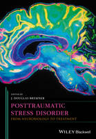 Bremner, J. Douglas - Posttraumatic Stress Disorder: From Neurobiology to Treatment - 9781118356111 - V9781118356111