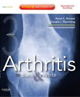 Brower, Anne C.; Flemming, Donald J. - Arthritis in Black and White - 9781416055952 - V9781416055952