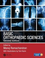 - Basic Orthopaedic Sciences, Second Edition - 9781444120981 - V9781444120981
