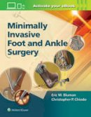 Chiodo, Christopher, MD; Bluman, Eric M. - Minimally Invasive Foot & Ankle Surgery - 9781451131611 - V9781451131611