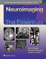 Sanelli, Pina, Schaefer MD  FACR, Pamela, Loevner MD, Laurie - Neuroimaging: The Essentials - 9781451191356 - V9781451191356