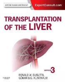 Busuttil, Ronald W.; Klintmalm, Goran B. - Transplantation of the Liver - 9781455702688 - V9781455702688