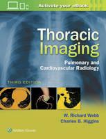 Webb, W. Richard, Higgins, Charles B. - Thoracic Imaging: Pulmonary and Cardiovascular Radiology - 9781496321046 - V9781496321046