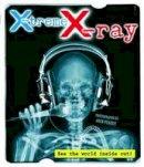Veasey, Nick - X-Treme X-Ray - 9781847324894 - V9781847324894