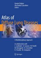 - Atlas of Diffuse Lung Diseases: A Multidisciplinary Approach - 9783319427508 - V9783319427508